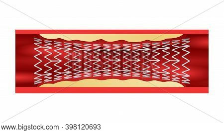 Coronary Stent In Blood Vessel - Metal Or Plastic Tube Inserted Into The Lumen Of Vein To Keep The P