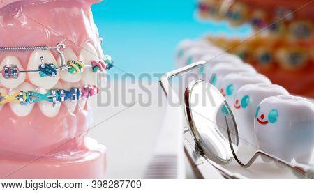 Orthodontic Model And Dentist Tool - Demonstration Teeth Model Of Varities Of Orthodontic Bracket Or