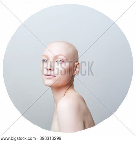 Beautiful Unusual Girl With Alopecia On A White Background In A Gray Circle With A Copy Space