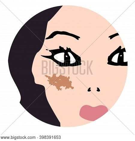 Pigmentation On The Skin. A Pigmented Spot On The Skin Of The Face. Illustration
