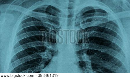 X-ray Of Human Lungs Close-up. Lung Pneumonia