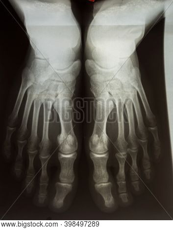 Radiography Of The Male Foot Of Two Legs
