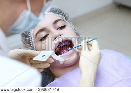 Professional Hygiene Of The Oral Cavity. The Dentist Applies A Purple Gel To The Patients Teeth Befo