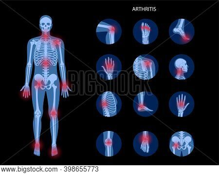 Pain In Male Human Body. Man Skeleton Silhouette. Spine, Knee, Other Joint Icons. Arthritis, Inflamm