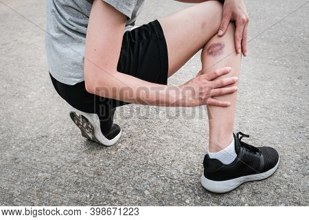 Shot Of Sport Woman Suffering From Injury, She Had Bruise On Her Leg. Injured After Runner Falling O