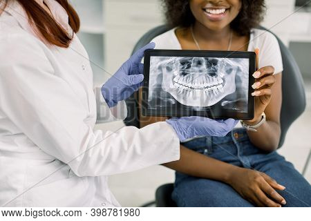 Close Up Cropped Image Of Female Dentist And African American Woman Patient At Dentists Office, Hold
