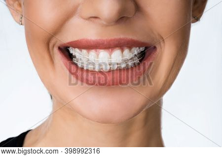Female Mouth With Metal White Dental Braces Or Brackets