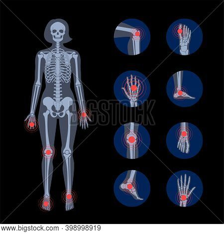 Pain In Human Body. Female Skeleton Silhouette. Spine, Knee, Wrist And Other Joint Icons. Arthritis,