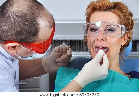 Dental Splint