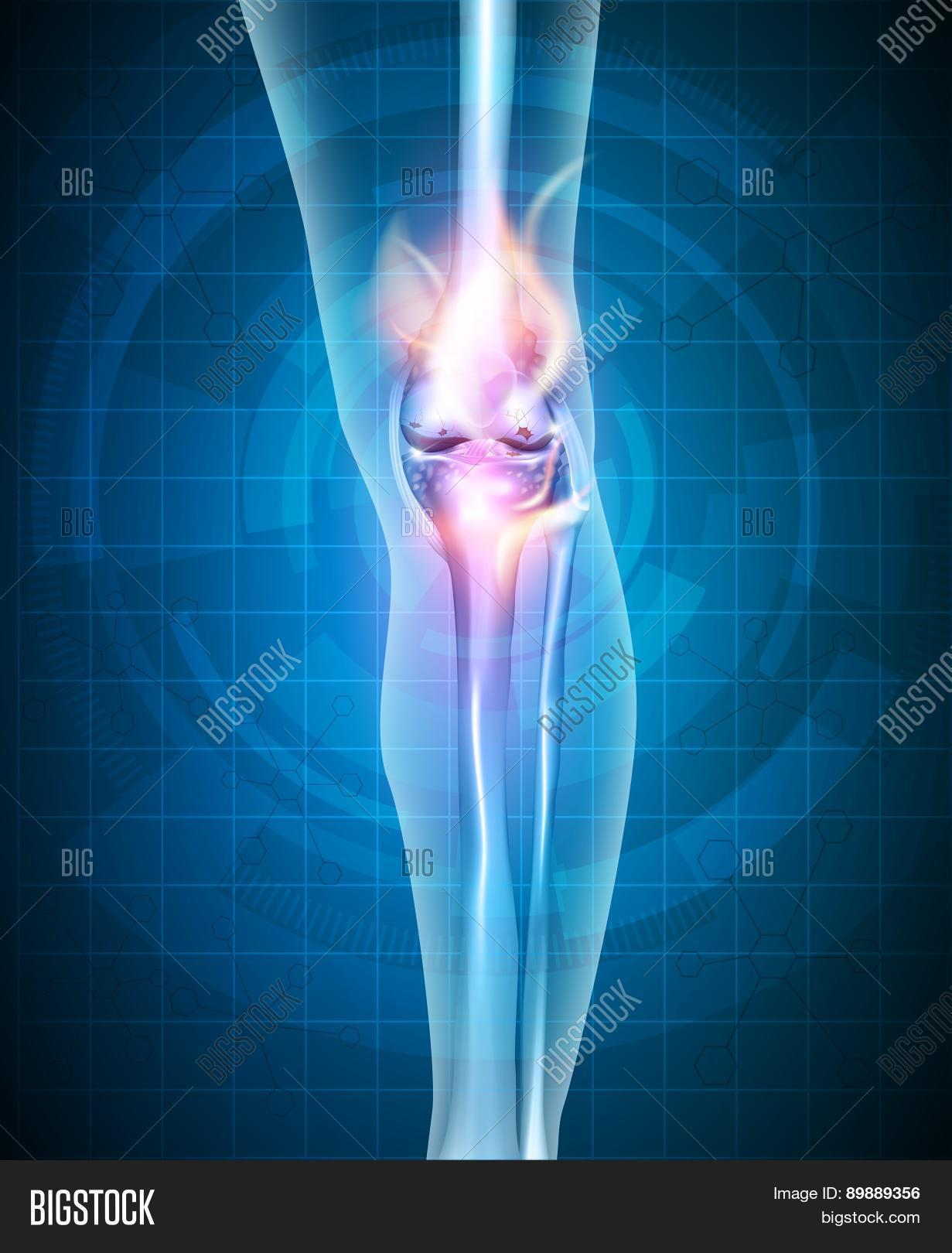 Normal Synovial Joint Vector & Photo (Free Trial) | Bigstock