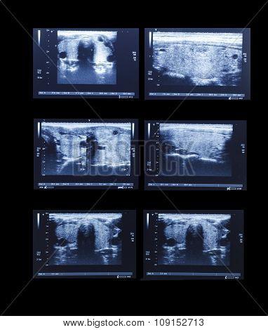 Sonography Upper Abdomen Medical Examination
