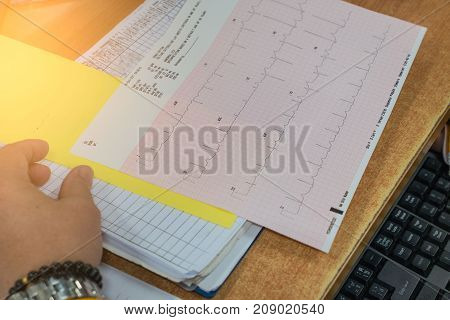 Heart analysis, electrocardiogram graph (ECG) on the table in the hospital .