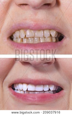 Teeth Whitening - Before And After