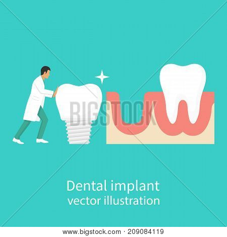 Dental implant. Dentist holding in hand of dentures. Medical equipment. Tooth treatment. Vector illustration flat design. Isolated on background. Stomatology concept.