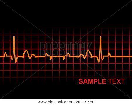 lifeline in an electrocardiogram, illustration