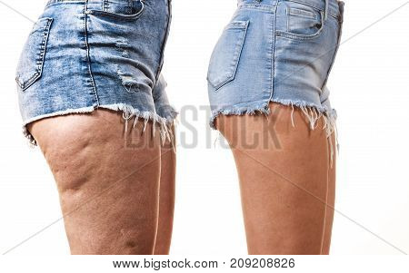 Comparison of female legs thighs with and without cellulite. Skin problem body care overweight and dieting concept.