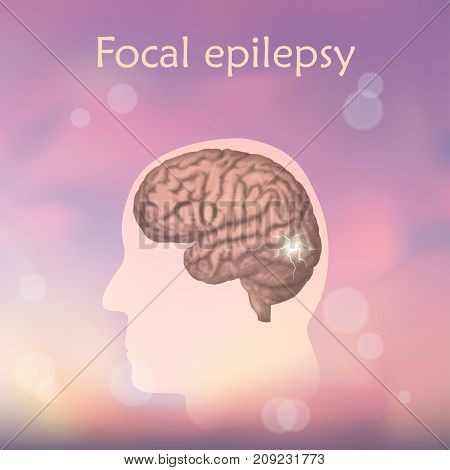 Focal epilepsy. Vector medical illustration. Blurred pink background, silhouette of man, anatomy image of brain, electrical discharge.
