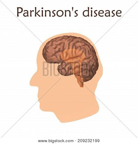 Parkinson's disease poster, banner. Vector medical illustration. White background, pink silhouette of old man head, anatomy image of damaged human brain.