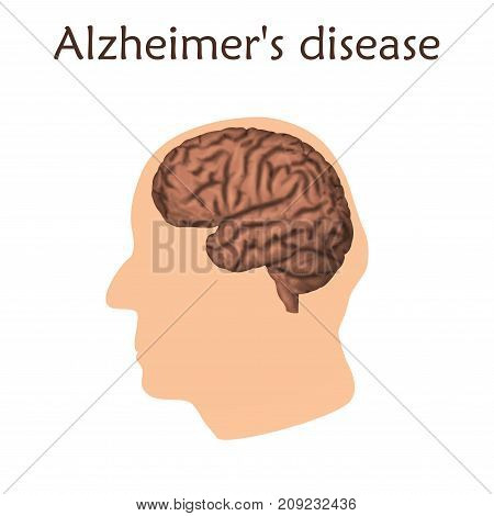 Alzheimer's disease poster, banner. Vector medical illustration. White background, pink silhouette of old man head, anatomy image of damaged human brain.