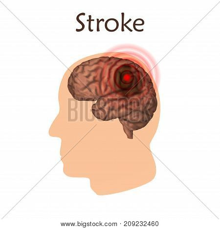 Stoke poster, banner. Vector medical illustration. White background, pink silhouette of man head, anatomy image of damaged human brain.