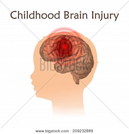Braim injury in infants, childhood. Vector medical illustration. Kid, baby. White background, silhouette of child head, anatomy image of damaged human brain.