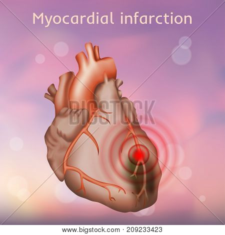 Myocardial infarction. Heart attack, pain. Damaged heart muscle. Anatomy illustration. Red image, blurred pink background.