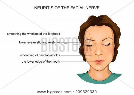 vector illustration of neuritis of the facial nerve