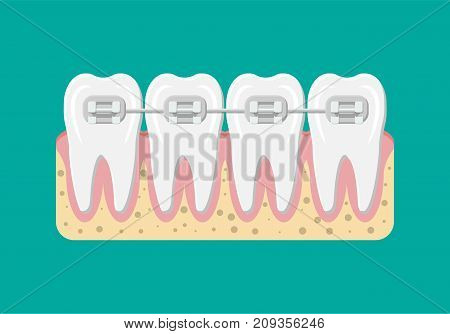 Teeth braces. Orthodontics and dentistry. Human tooth in flat style. Dental concept. Hygiene and oralcare. Vector illustration