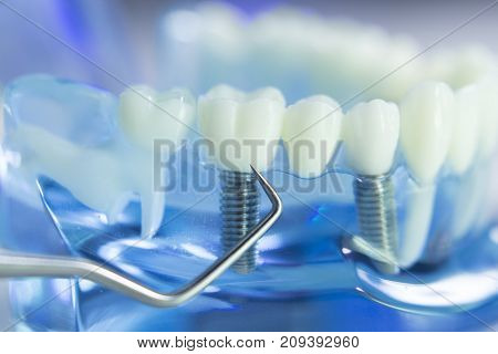 Dental Teeth Dentist Model