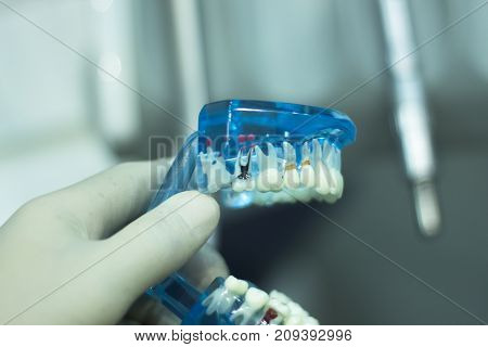 Dental Teeth Dentists Clinic