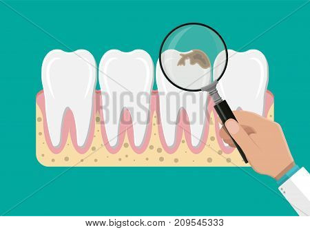 Dentist with magnifying glass examines teeth. Tooths icon with gum. Human teeth in flat style. Dental concept. Hygiene and oralcare. Vector illustration
