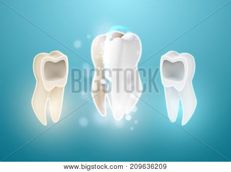 Illustration of Teeth Whitening System. 3D Realistic Vector Tooth Cleaning Process Illustration