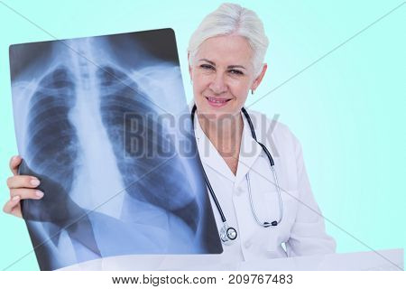Portrait of smiling female doctor examining chest X-ray against blue vignette background
