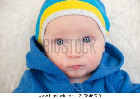 A child with atopic dermatitis and large eyes