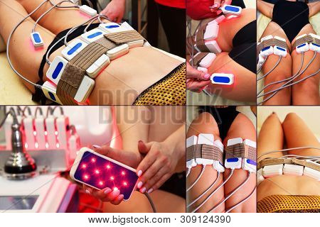 lipo laser. Hardware cosmetology. Body care. Non surgical body sculpting. body contouring treatment, anti-cellulite therapy. Large collage with different parts of the body. poster