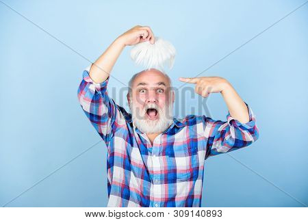 Hair Loss. Early Signs Balding. Man Losing Hair. Artificial Hair. Health Care Concept. Male Pattern
