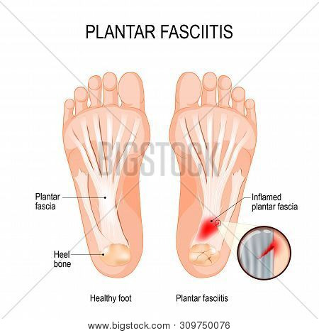Plantar Fasciitis. Disorder Of The Connective Tissue Which Supports The Arch Of The Foot. Vector Dia