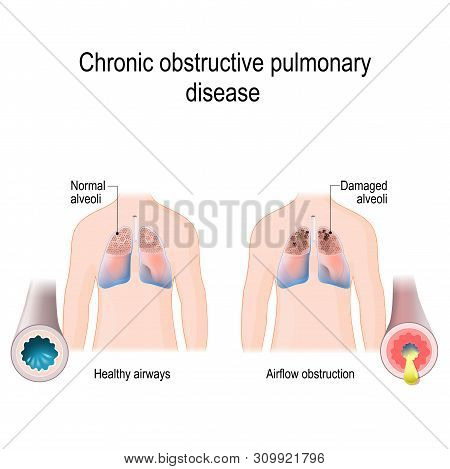Chronic Obstructive Pulmonary Disease (copd). Vector Diagram For Medical, Educational And Scientific