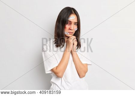 Traumatised Beaten Woman With Bruises Being Vicrtm Of Violence And Aggression Looks Frustrated At Ca