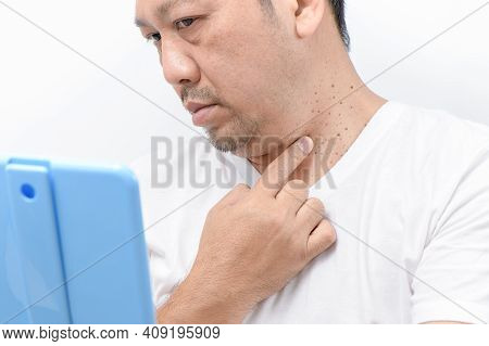 Middle-aged Mam Point To Skin Tags Or Acrochordon On Neck Man On White Background. Health Care Conce
