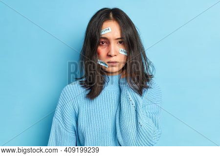 Photo Of Abused Woman With Bloody Eye And Bruise Being Injured By Cruel Person Fights Against Crime