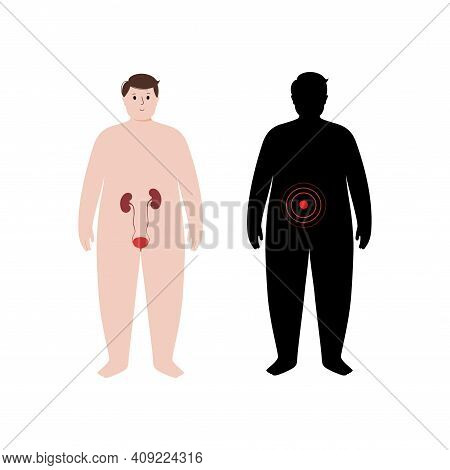 Pain, Inflammation In Kidney. Mellitus Diabetes, Dialysis. Adult Obese Man Anatomy Poster. Ache In O