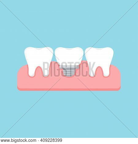 Tooth And Dental Implant In Gum Isolated On Blue Background. Healthy Human Teeth And Implant Prosthe