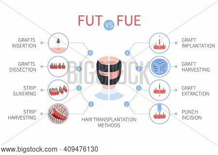 Fue Vs Fut Hair Transplantation Medical Infographics