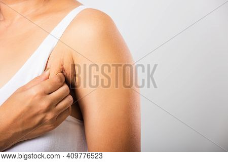 Close Up Of Asian Woman Pulling Excess Fat On Her Skin Underarm She Problem Armpit Fat Underarm Wrin
