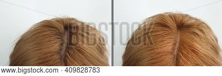 Woman Hair Baldness Before And After Treatment
