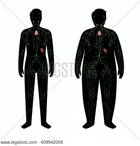 Lymphatic System Concept. Lymph Nodes And Ducts In Obese And Normal Male Silhouette. Lymphatic Vesse