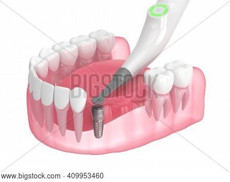 3D Render Of Jaw With Buried Healing Cap And Smart Implant Detector