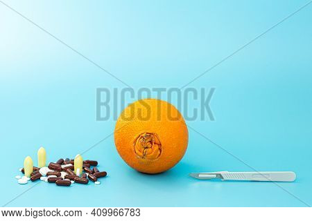 The Concept Of Drug And Surgical Treatment Of Tumors. Scalpel, Medicines And An Orange With A Large
