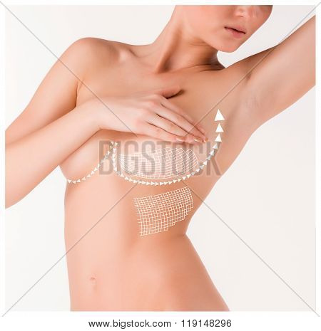 Boobs correction with help of plastic surgery on white background. Concept of thread-lifting poster